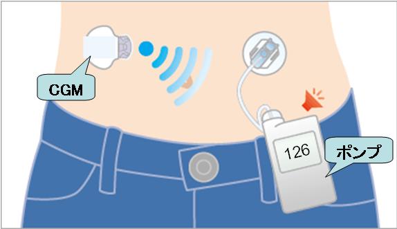 パーソナルCGM機能搭載インスリンポンプの装着イメージ